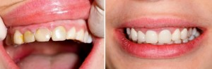 cosmetic dentist puyallup, wa