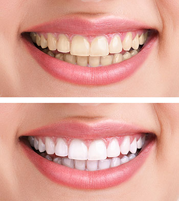 Crown-Lengthening-and-Cosmetic-Dentistry