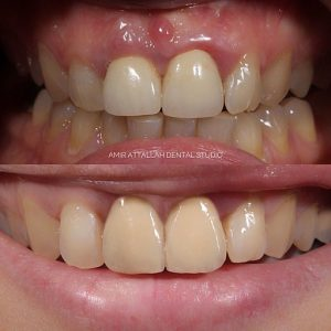 Cosmetic Dentistry in Puyallup, WA - Crown Lengthening, before and after images.