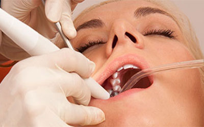 sedation dentistry facts That you didn't know