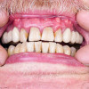 Signs-&-Symptoms-of-Gum-Diseaser