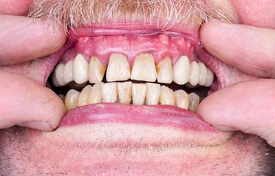 Sign and Symptoms of Gum Disease