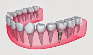 Dental Implant Puyallup WA
