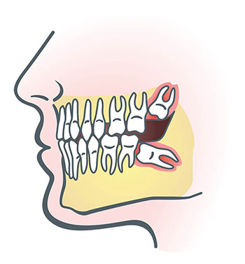 How do you know if you need to have your wisdom teeth removed?