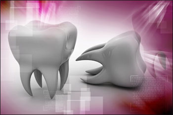 Unlike metal amalgams, composite fillings are tooth-colored and blend in well with your smile